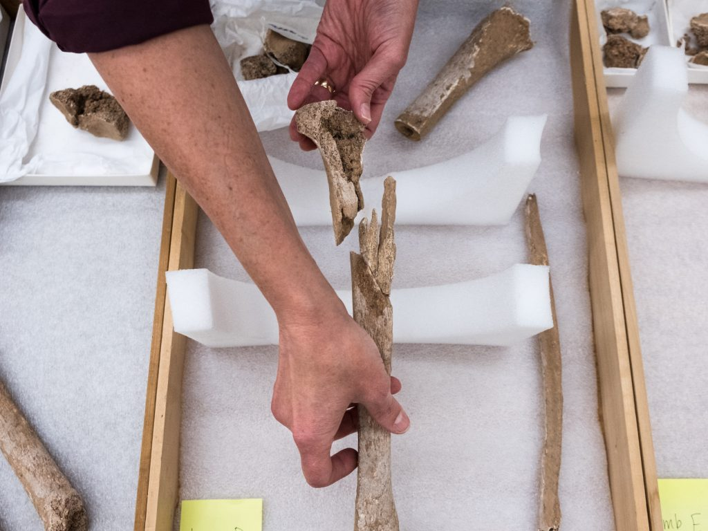 Karin Bruwelheide handles an amputates limb that dates back to the Civil War. The bones were discovered by scientists at Manassas National Battlefield Park in Virginia. Scientists at the Smithsonian Institution's National Museum of Natural History have been analyzing the bones to learn more about them and who they may have belonged to.