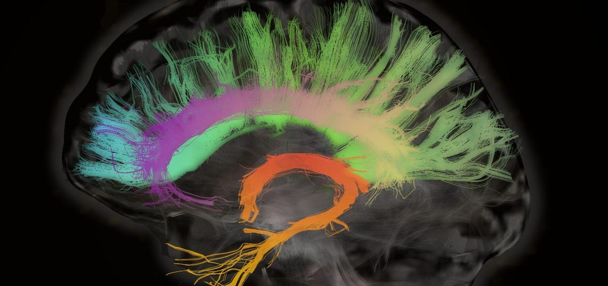 A cross section of the human brain shows fiber tracts involved in aging.