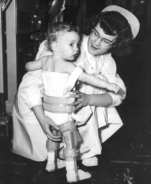Nurse holds toddler, who is wearing leg and chest braces.