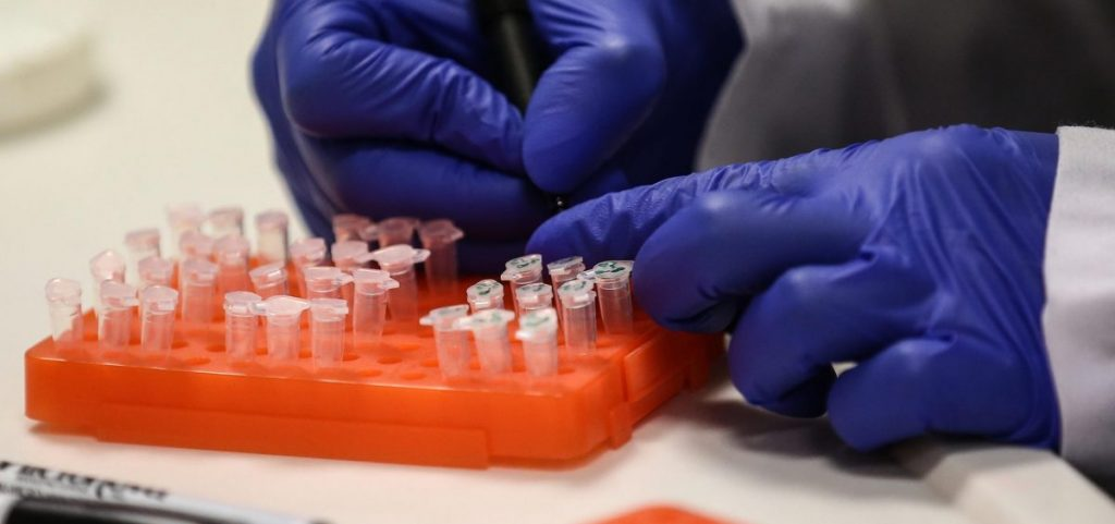 A scientist at work on a COVID-19 vaccine candidate at Bogazici University in Istanbul in August.
